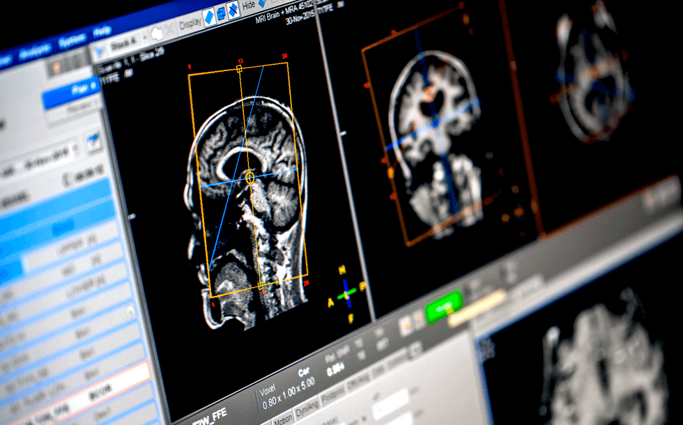 De-Identification of Medical Images for AI and Machine Learning Webinar