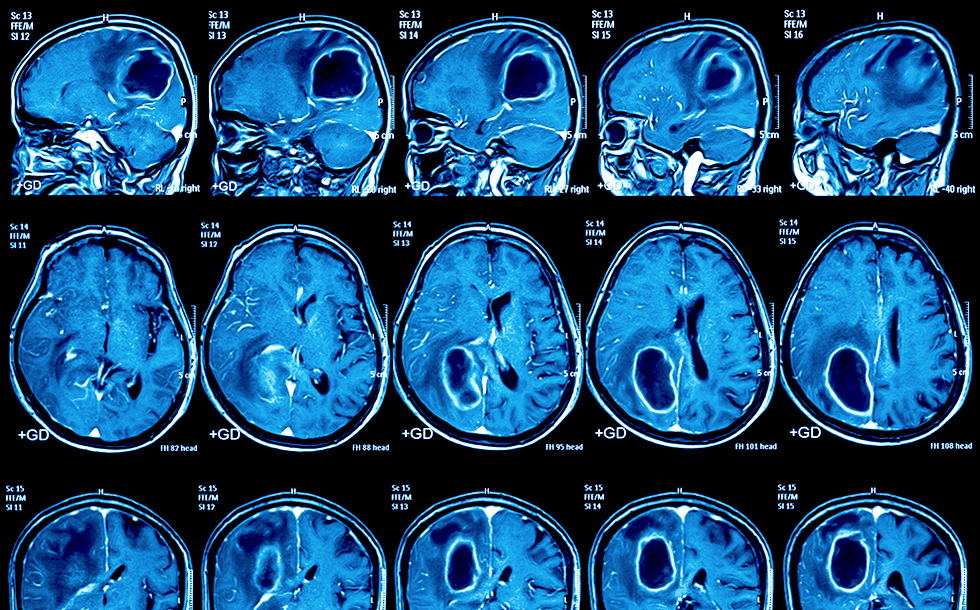 Validating Clinical AI from the Perspective of a Neuroradiologist